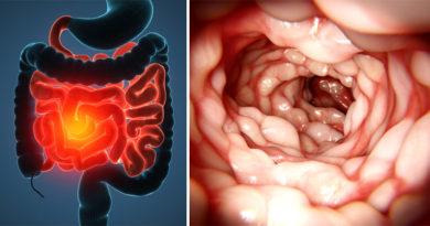 boala crohn imagine